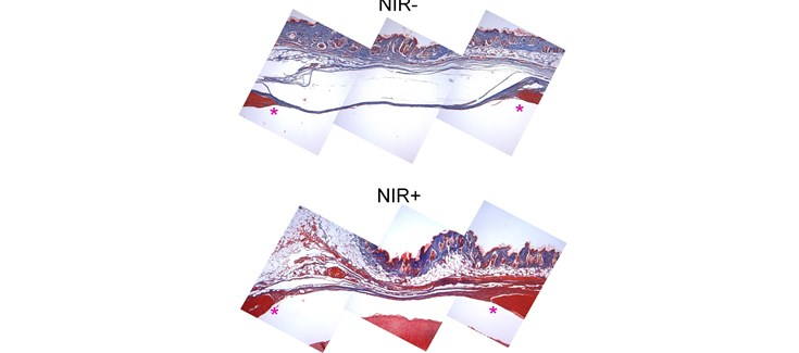 ciber-bbn isciii. Desarrollan hidrogeles sensibles al infrarrojo para controlar la regeneración de tejido óseo